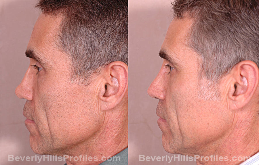 side view Male before and after Revision Rhinoplasty