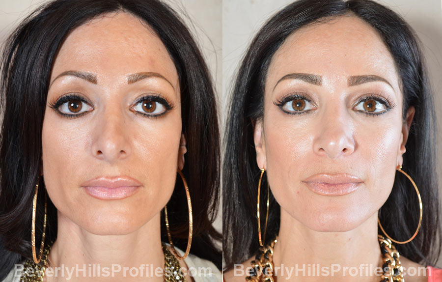 front view - Female patient before and after Revision Rhinoplasty