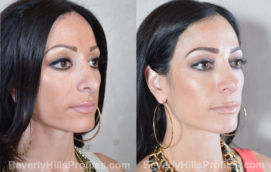 oblique view - Female patient before and after Revision Rhinoplasty