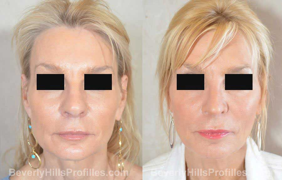 imgs Female before and after Nose Surgery front view