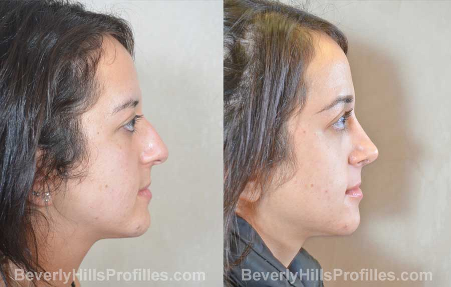 imgs Female before and after Nose Surgery, front view