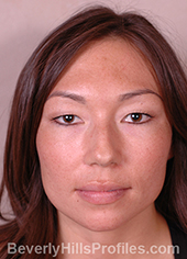 Female face, before Asian Rhinoplasty treatment, front view, patient 1