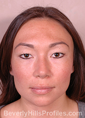 Female face, after Asian Rhinoplasty treatment, front view, patient 1