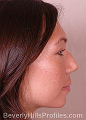 Female face, before Asian Rhinoplasty treatment, right side view, patient 1
