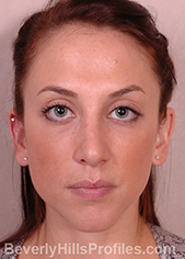 Female face, after external nasal valve treatment, front view