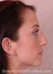 Female face, before external nasal valve treatment, right side view