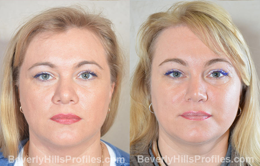 imgs female patient before and after Browlift Procedures