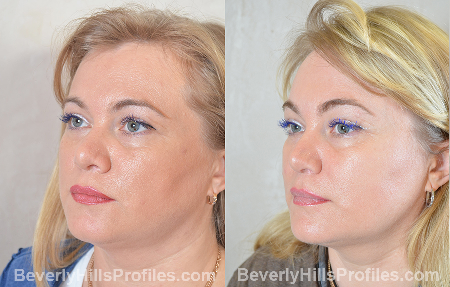 patient before and after Browlift Procedures