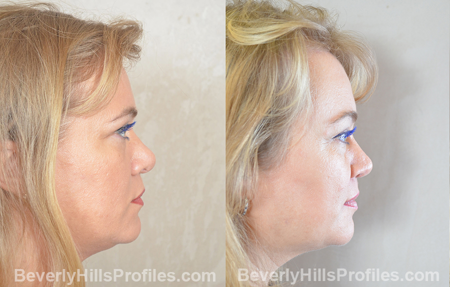 imgs female before and after Browlift Procedures