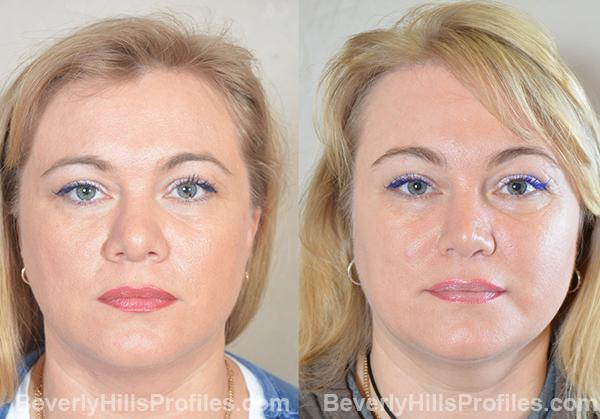 Revision Rhinoplasty Before and After Photo Gallery - front view, female patient 27
