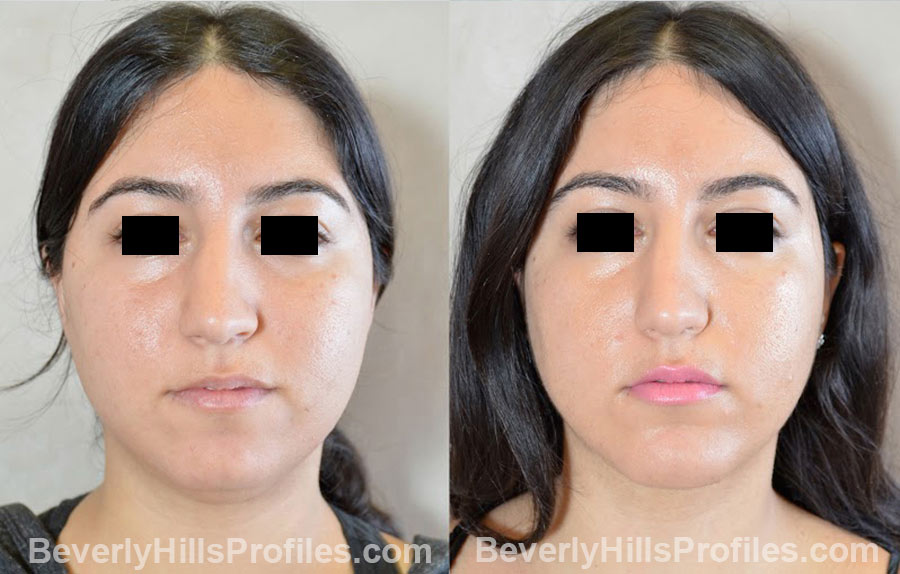 patient before and after Chin Implants - front view