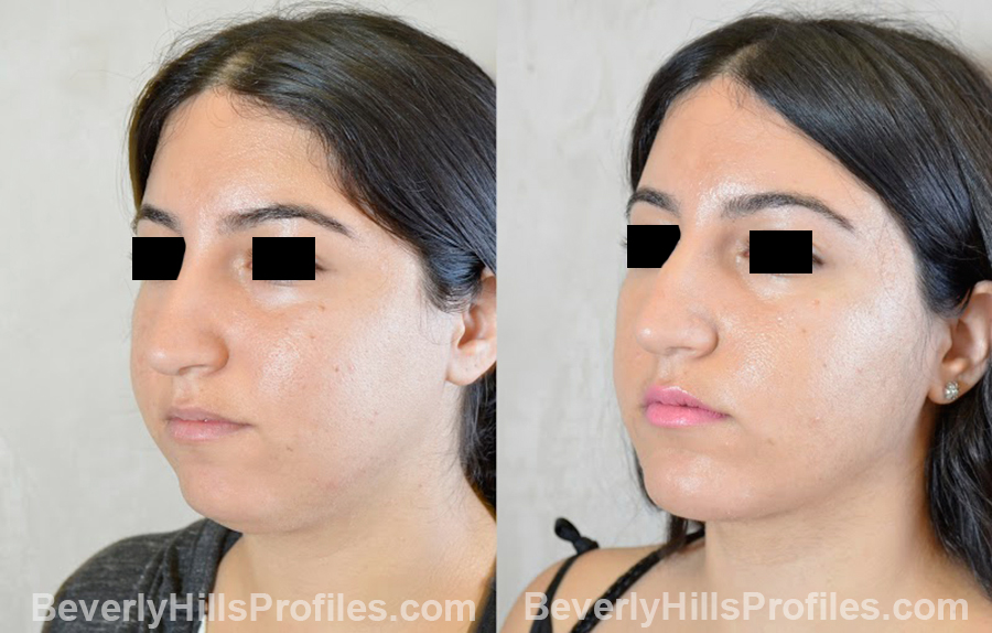 patient before and after Chin Implants - oblique view