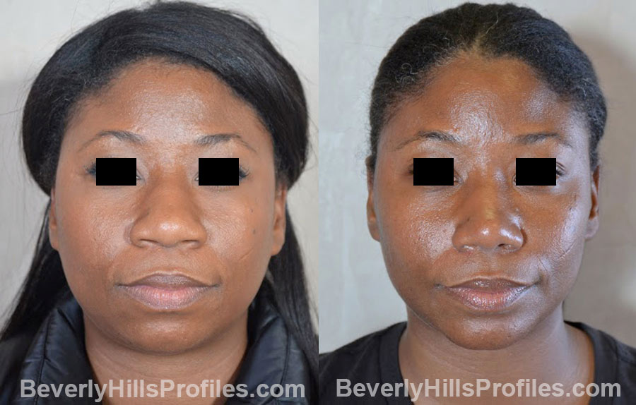 front view - Female patient before and after Chin Implants