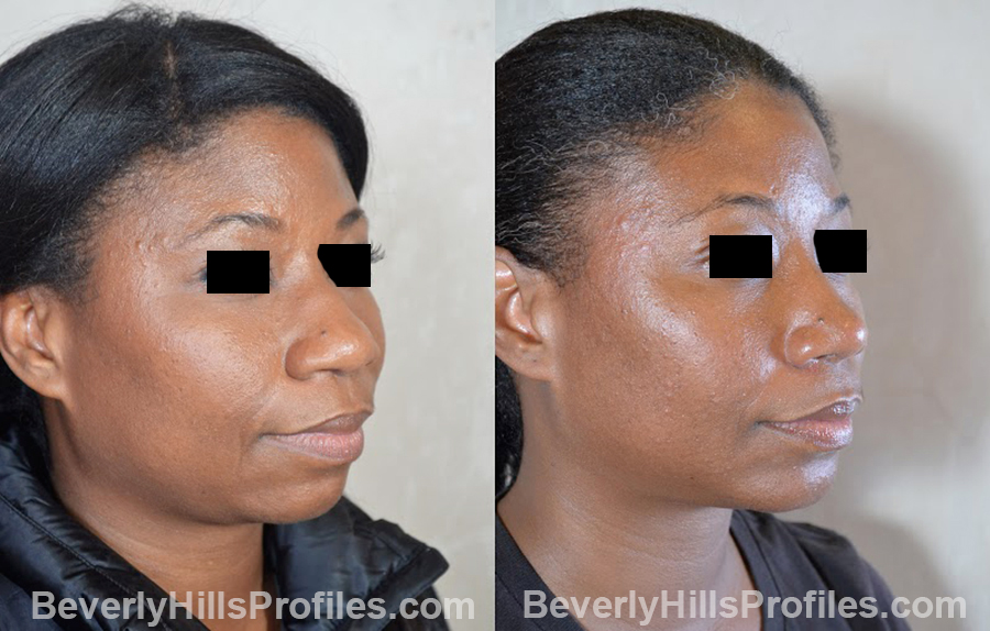 oblique view - Female before and after Chin Implants