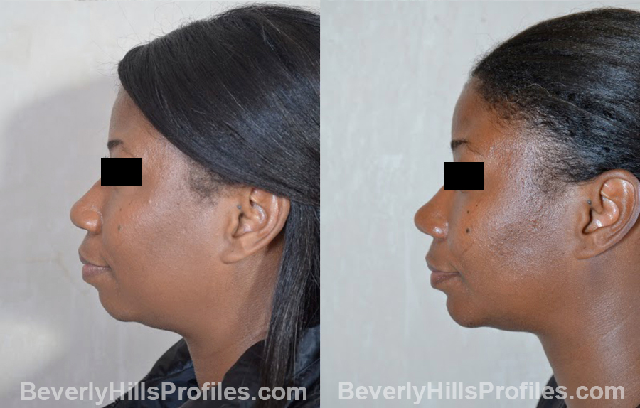 side view - Female before and after Chin Implants