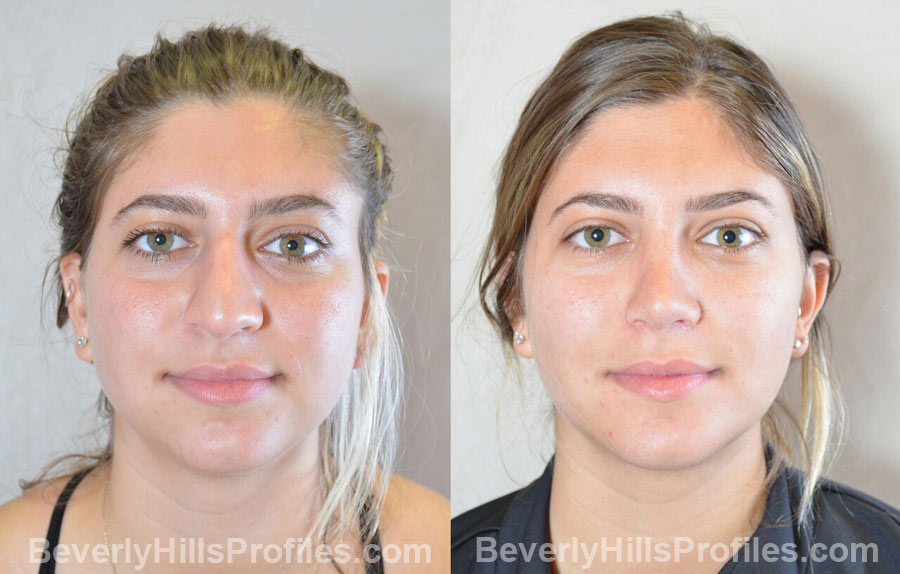 Female before and after Chin Implants - front view