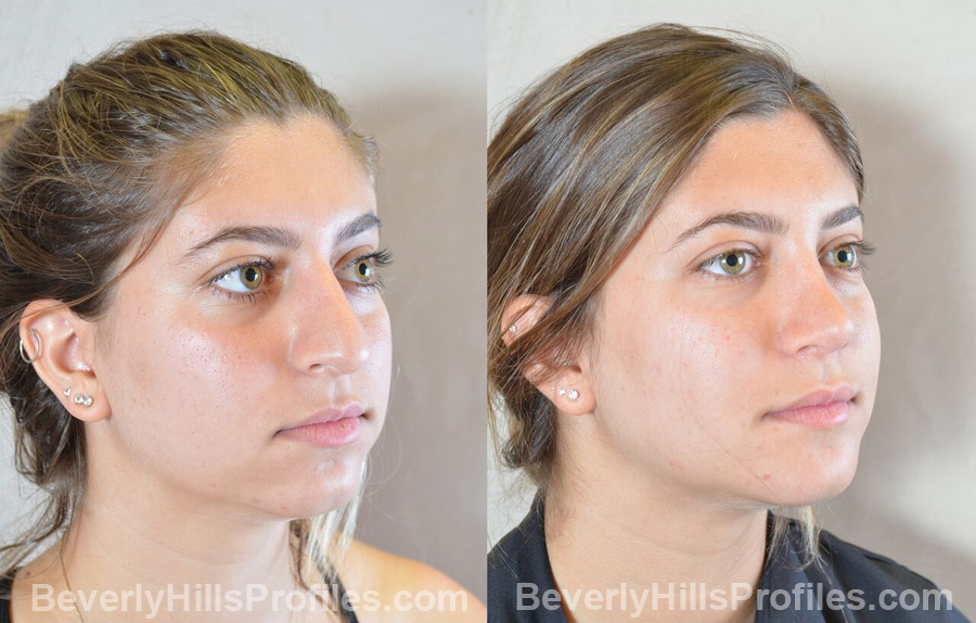 Female before and after Chin Implants - oblique view