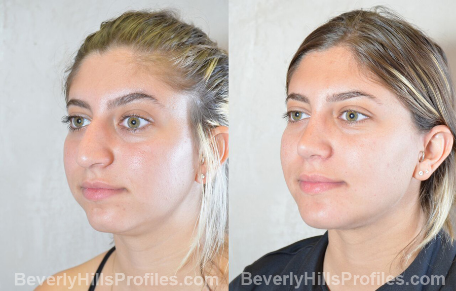 Female before and after Chin Implants, oblique view