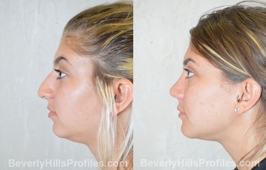 Female before and after Chin Implants - side view