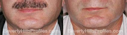 Male before and after Chin Implants - front view