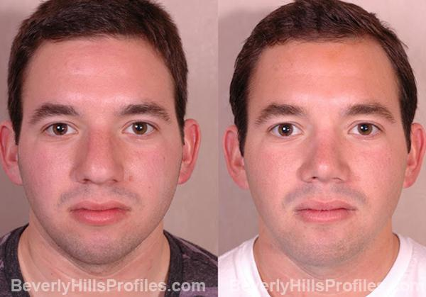 before and after Chin Implants - front view