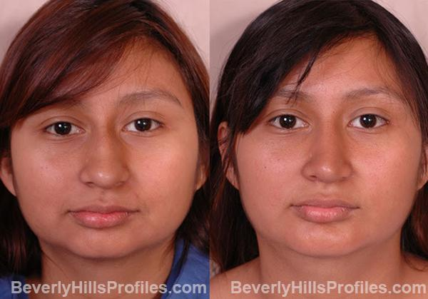 Female patient before and after Chin Implants, front view