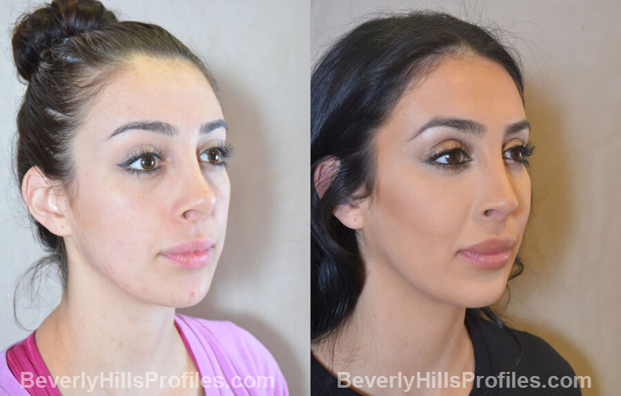oblique view - Female patient before and after Facial Fat Transfer