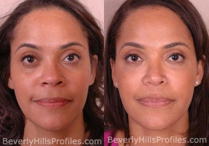 Female patient before and after Facial Fat Transfer, front view