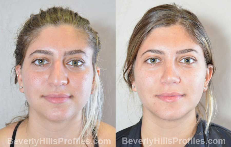 rhinoplasty before and after photo gallery