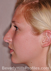 Young woman's face, before hanging columella treatment, left side view