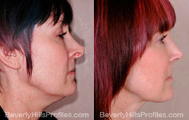 Before and After Photos. Neck Liposuction. Female - right side view