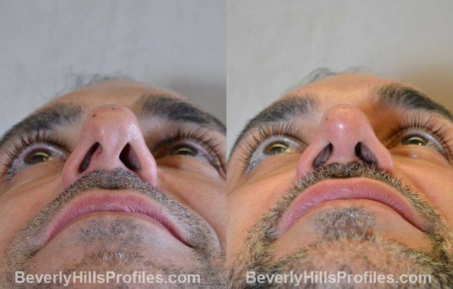 photos Male patient before and after Nose Surgery - front view