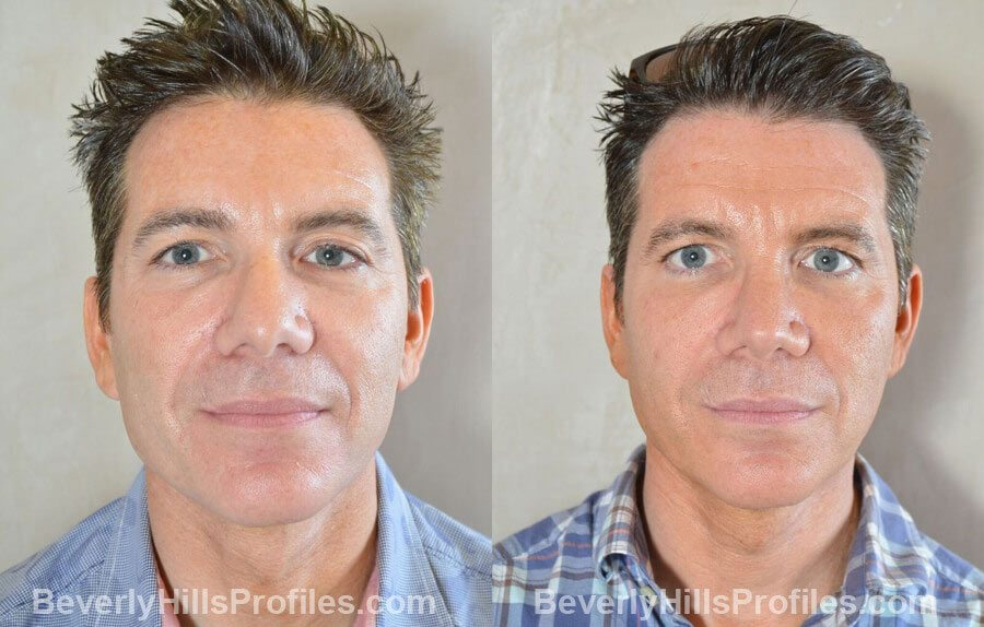 photos Male patient before and after Nose Surgery Procedures - front view