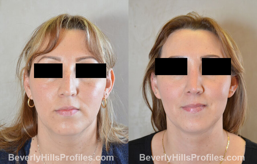 photos female patient before and after Necklift - front view