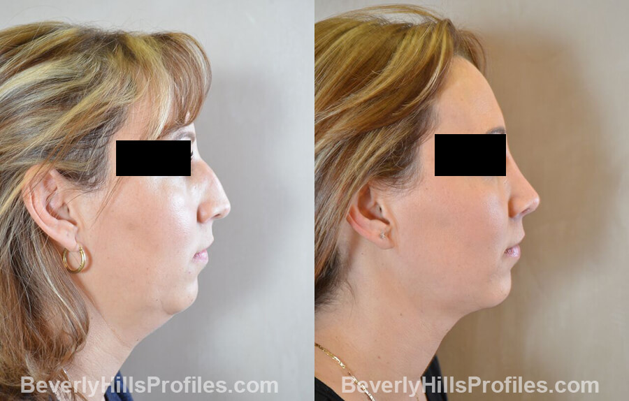 photos female patient before and after Necklift - right side view