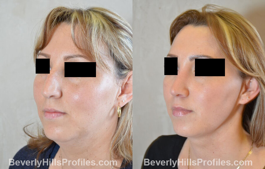 photos female patient before and after Necklift - left oblique view