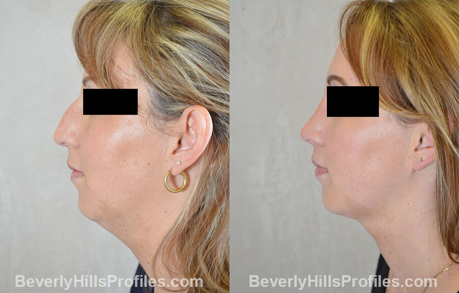 photos female patient before and after Necklift - left side view