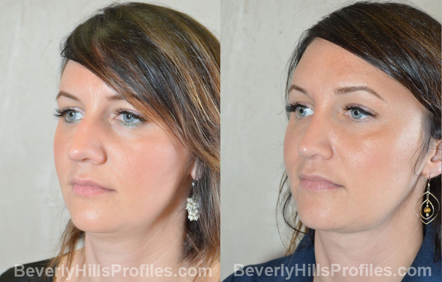 oblique view before and after Necklift Procedures