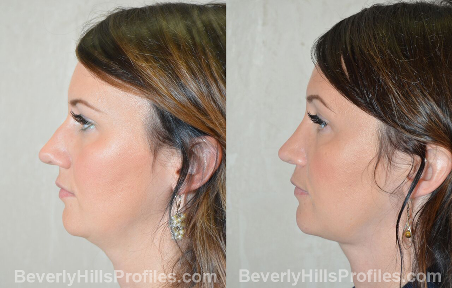 left side view before and after Necklift Procedures