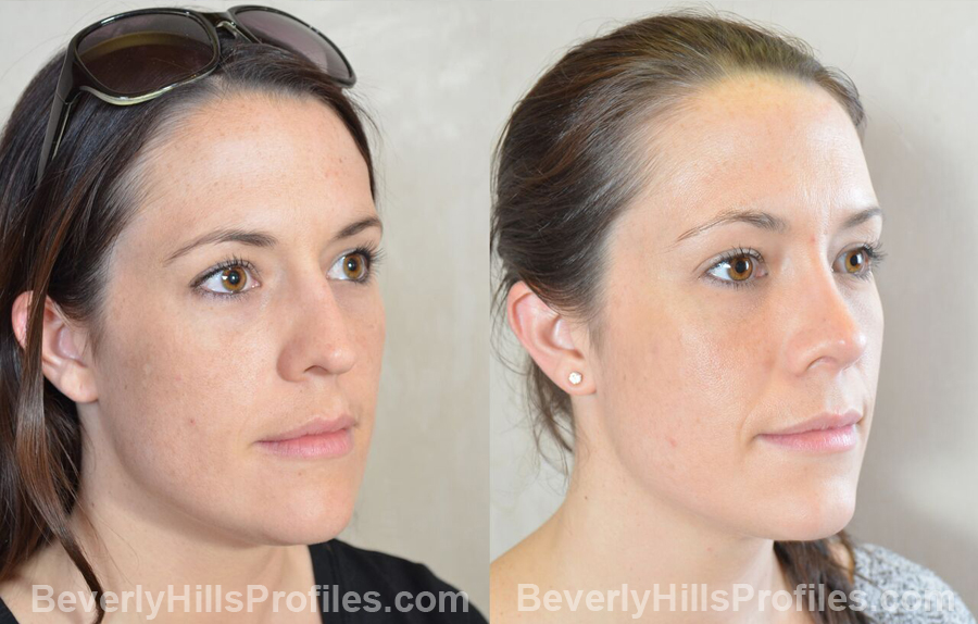 photos patient before and after Necklift - oblique view