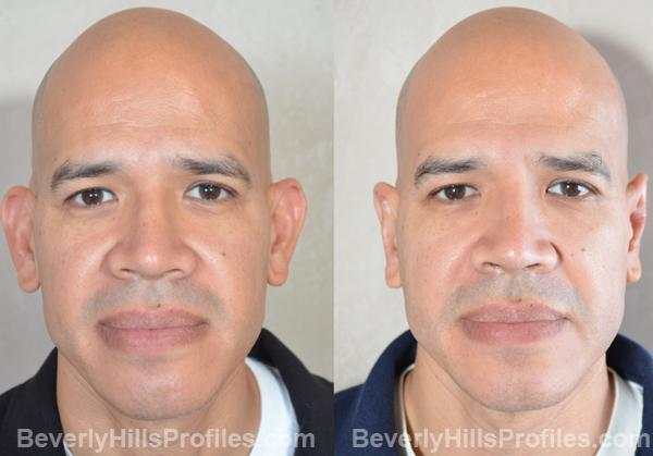 male patient before and after Otoplasty Procedures