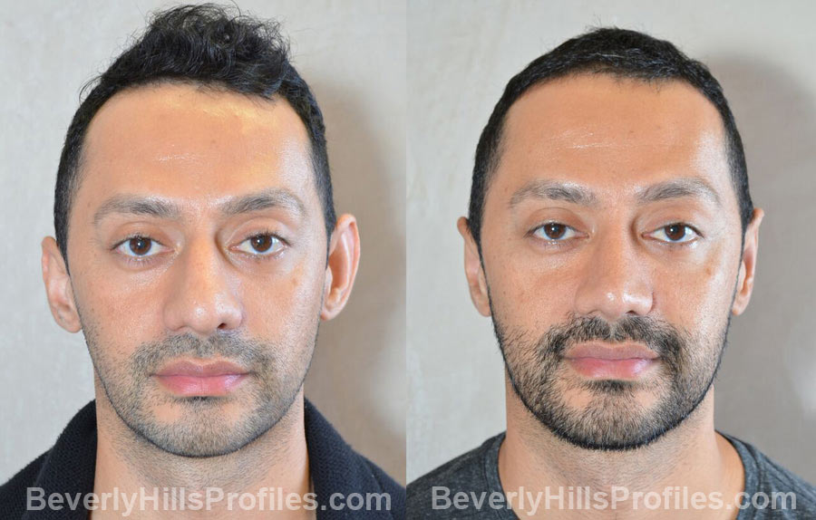 images male patient before and after Otoplasty Procedures - front view