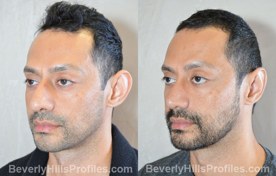 images male patient before and after Otoplasty Procedures - oblique view