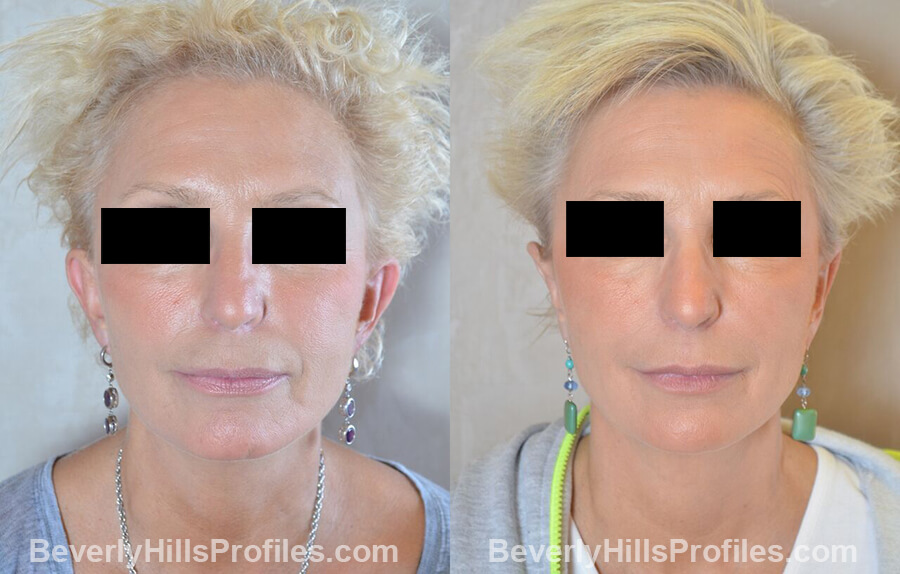 female patient before and after Otoplasty Procedures - front view