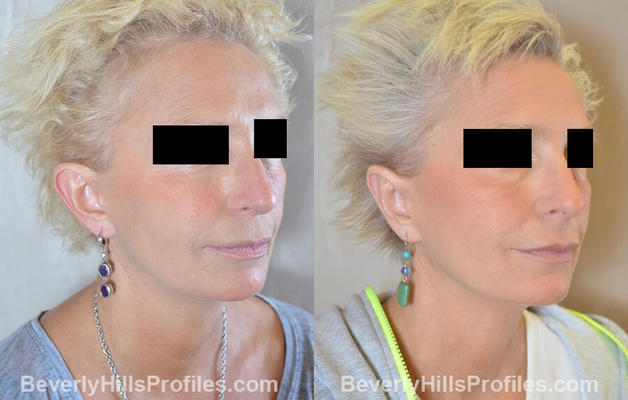 female patient before and after Otoplasty Procedures - oblique view