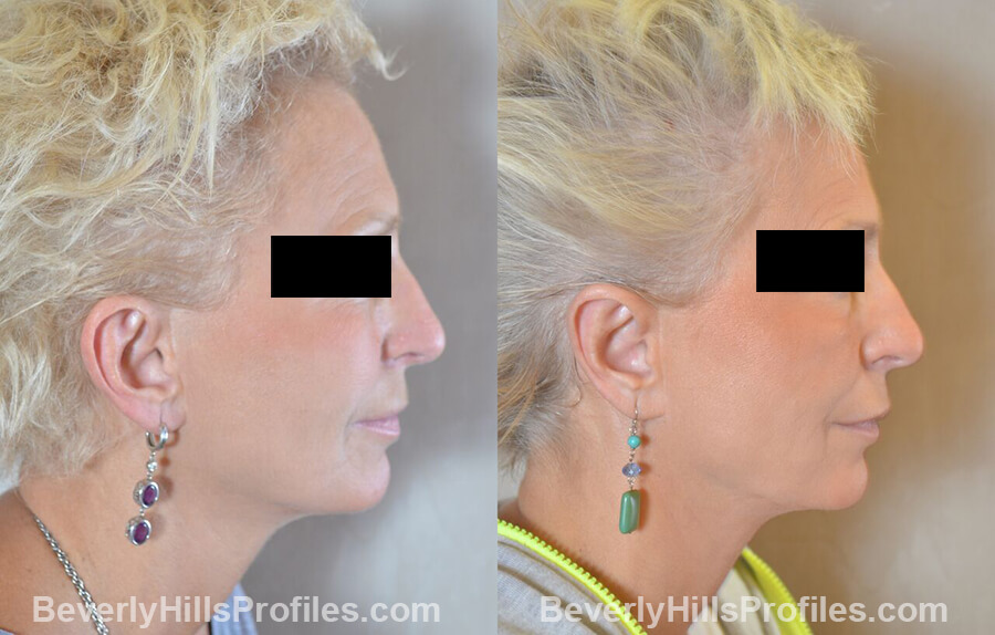 female patient before and after Otoplasty Procedures - right side view