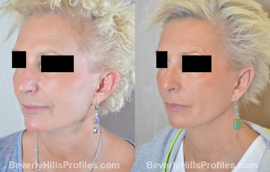 female patient before and after Otoplasty Procedures - left oblique view