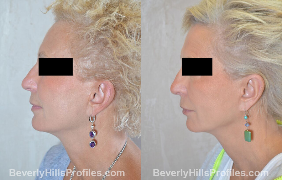 female patient before and after Otoplasty Procedures - left side view
