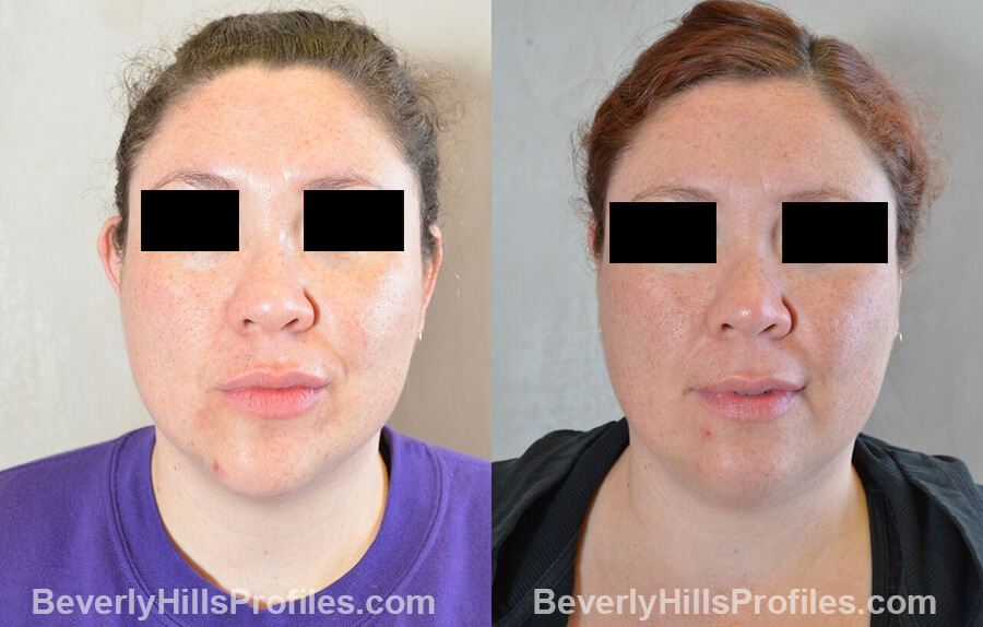 photos female patient before and after Otoplasty Procedures - front view