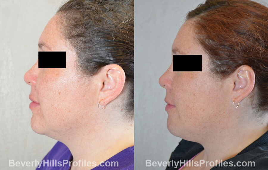 photos female patient before and after Otoplasty Procedures - left side view